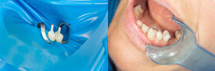 restoration of teeth after endodontic treatment with fiberglass pins. The concept of aesthetic orthopedic dentistry