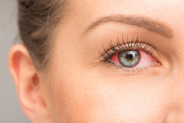 Red eye for irritation of the sclera