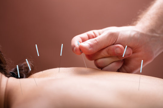 Therapist Performing Acupuncture Therapy On Woman's Back
