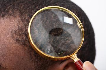 Man's Hair Seen Through Magnifying Glass