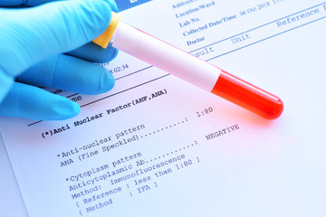 Laboratory result of anti-nuclear factor or ANF test, autoimmune diagnosis