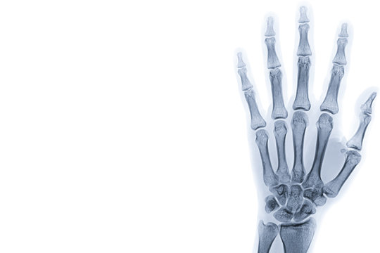 X-ray image of left hand isolated on white background with copy space and background.