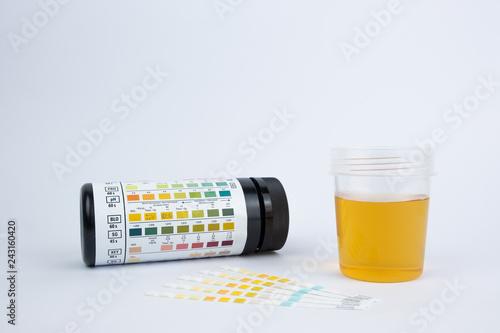 proteiner i urin