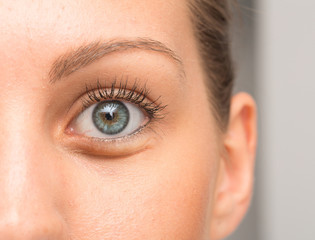 Eye bags under eyelid of a caucasian woman