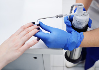 Removal of papillomas and warts on the hand with liquid nitrogen in a special device with a probe - cryodestructors. Cryotherapy or cryosurgery - cold treatment.