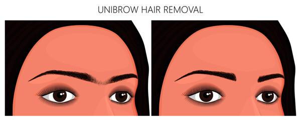 Vector illustration. Unibrow on woman's face before, after excess hair remove. Close up view. For advertising and beauty publications