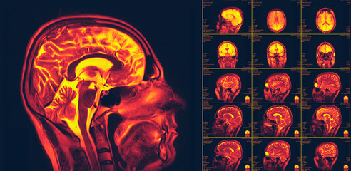 Magnetic resonance imaging of the brain. MRI scan