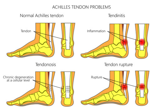 Illustration of Skeletal ankles (side view and back view) with normal and injured  Achilles tendon (tendinitis, tendinosis and torn)
