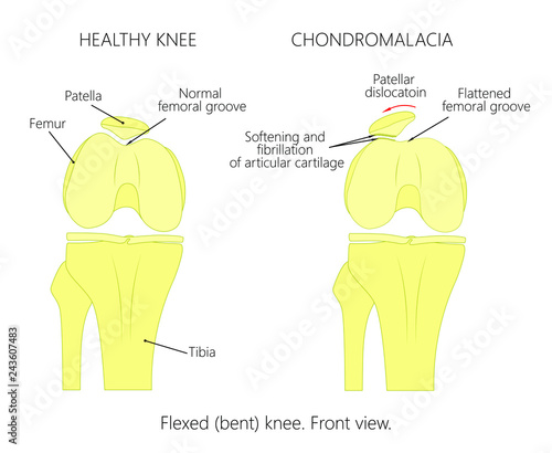 illustration (diagram) of normal knee joint and a knee with Medical Diagram of Knee illustration (diagram) of normal knee joint and a knee with chondromalacia patella flexed (bent) knee front view