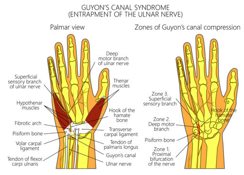 Vector illustration. Guyon canal syndrome or entrapment of the ulnar nerve.