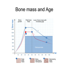 Bone mass for male and female. Age and osteoporosis. Chart.
