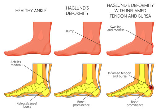 Illustration of an ankle (side view) with Haglund's deformity, inflamed Achilles tendon and bursitis.  For medical publications
