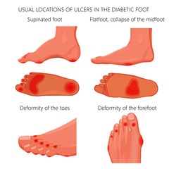 Illustration of usual locations of ulcers in the diabetic foot