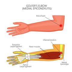 Illustration of Medial Epicondylitis or golfer's elbow.  Used: Gradient, transparency, blend mode. For medical publications.