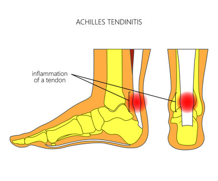 Illustration of Skeletal ankle (side view and back view) with tendinitis of Achilles tendon