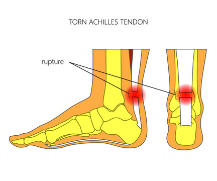 Illustration of Skeletal ankle (side view and back view) with torn Achilles tendon