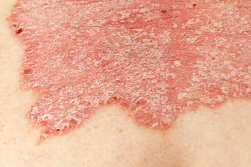 Detail of psoriatic skin disease Psoriasis Vulgaris with narrow focus, skin patches are typically red, itchy, and scaly