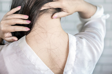 closeup Asian woman back with problem hair loss falling on neck behide and shoulder