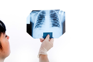 The doctor is studying an x-ray image of the human chest to identify pneumonia.