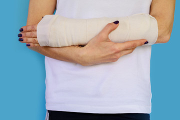 Woman with broken arm bone in cast, plastered hand on blue background.