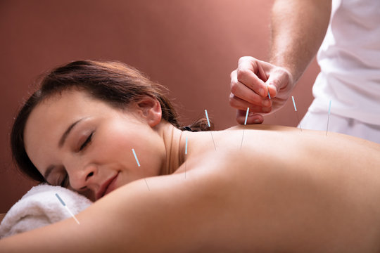 Woman Going Through Acupuncture Treatment