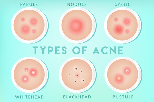 Acne types: whiteheads, blackheads, pustules, papules, cysts, nodules