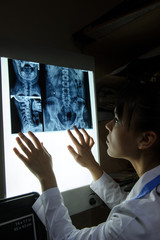 picture of a woman doctor exploring spinal x-ray: lumbar and cervical region - first 2 cervical vertebrae (axis and atlas), the coxofemural joint