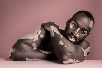 Close up fashion portrait of a male afro or african model with white pigmentation. Concept of no racism. Conceptual image of young man at pink studio background