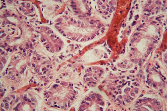 Human lung tissue with Pulmonary embolism under a microscope.