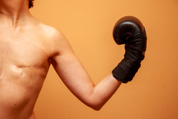 Mastectomized female boxer poses with her boxing gloves and naked torso