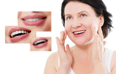 Collage of healthy smiling people. Beautiful middle age woman with white veneers and perfect smile. Tooth care dental medicine. Isolated and copy space.