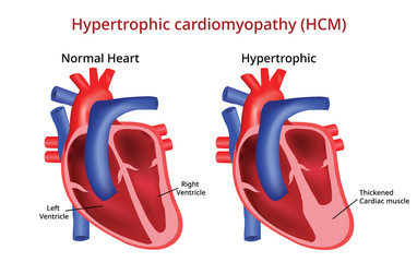 Hypertrophic cardiomyopathy, Heart disease