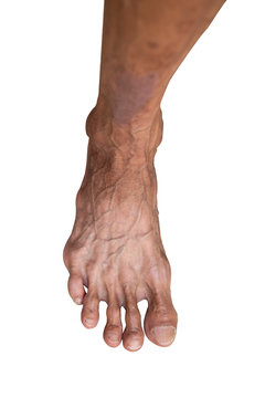 Hand of thin man who is alcoholism, Isolate on white background, artery has appears clearly, Skin wrinkles over should be. Clipping path. Healthcare idea concept.