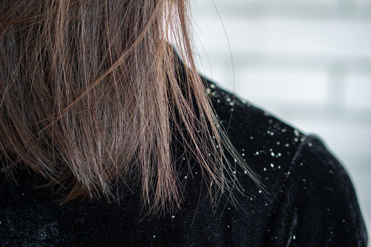 woman hair having problem with dandruff on shoulder