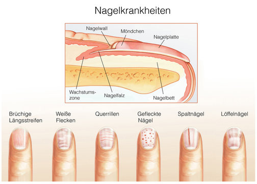 Nagelkrankheiten