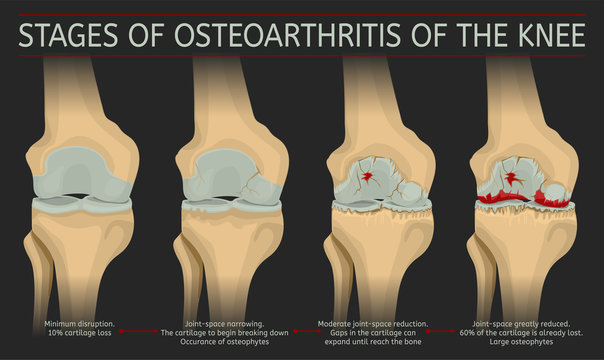 Stages of osteoarthritis of the knee