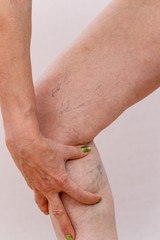 Concept for medicine and cosmetology. 60 year old woman shows in detail her legs with varicose veins and cellulite on a white isolated background.