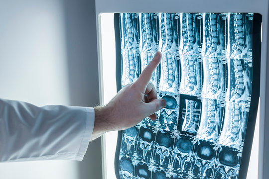 Neurologist and surgeon examine a patient's spine image