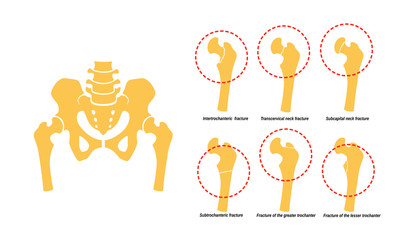 6 Types of Femoral Neck Fracture. Fragment of the structure of the human skeleton. Pelvic girdle and thighs. Silhouette. Sign. Vector.