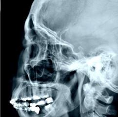 radiografia lateral de cuello y cabeza