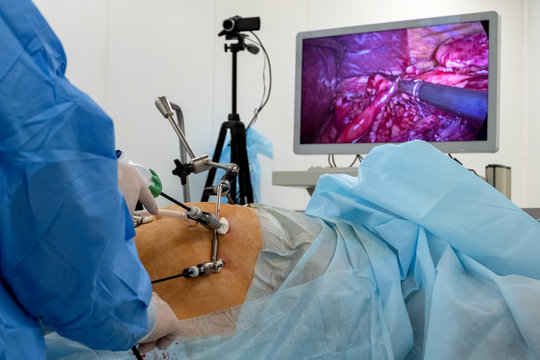 A team of surgeons using endo-instruments operate the patient's abdomen. Endoscopy. Surgery on the body of a complete woman is broadcast online on a monitor or high-definition television. .