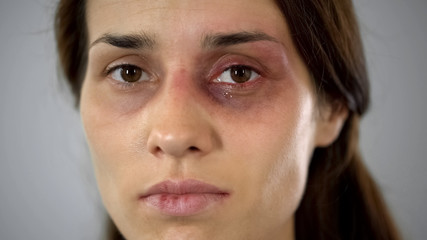 Hurt lady crying, bruised face close-up, domestic violence issue, awareness Wall mural