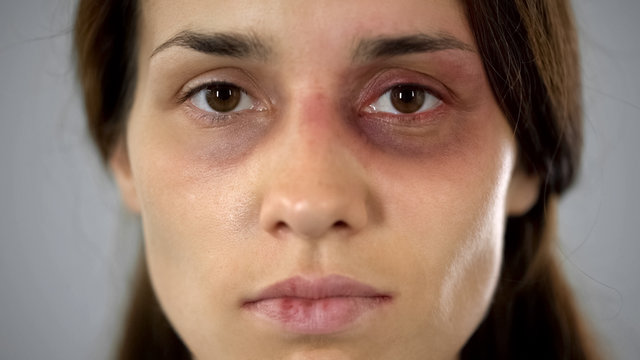 Woman with bruise on face sadly looking at camera, victim of assault in family