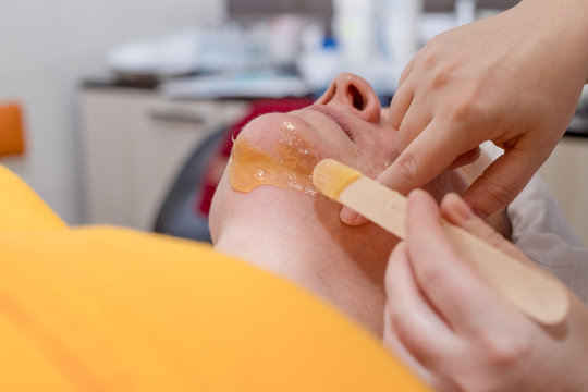 Body Care. Hair Removal on chin. Beautician Removing Hair Of Woman's face. Laser Epilation Treatment In Cosmetic Beauty Clinic. Hairless Smooth And Soft Skin. Health And Beauty Concept.wax for