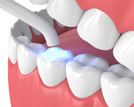 3d render of jaw with dental polymerization lamp and light cured inlay