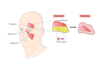 acute and chronic sinusitis