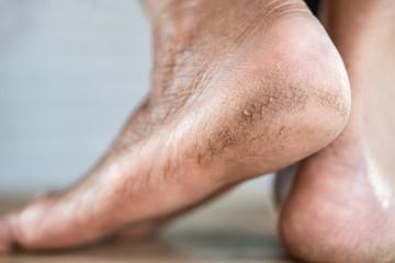 closeup cracked heels of old female feet