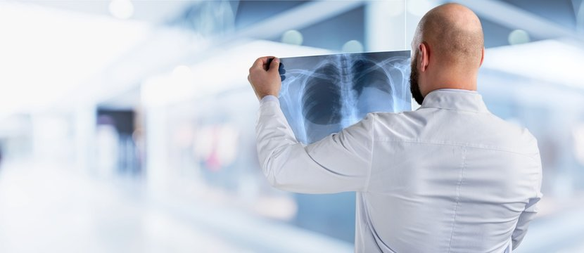 Portrait of young doctor man holding x-ray of human breast