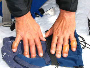 Frostbite at a male human fingers of a hands, image from Himalayas mountain.Unrecognizable person