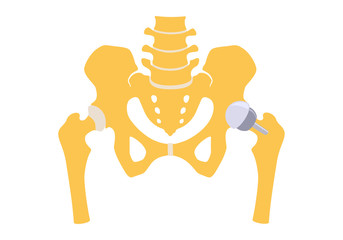 Fototapeta Hip replacement partly half. Vector illustration. Isolated on white background obraz